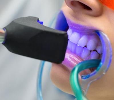 BLEACHIG (diş beyazlatma)