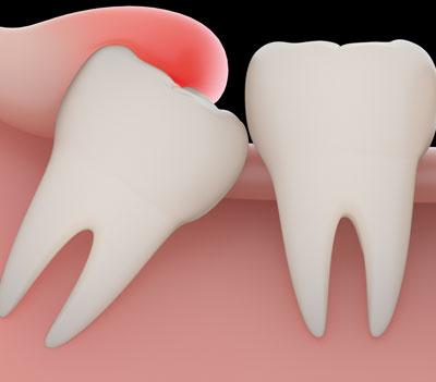 20 yaş dişleri cerrahisi